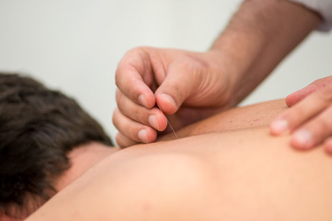 Man getting a dry needle treatment